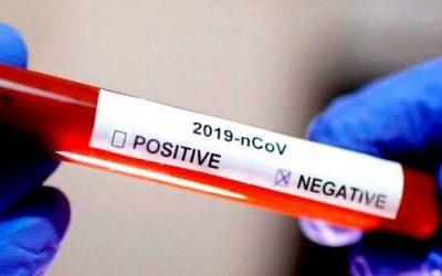 teste-negativo-covid19